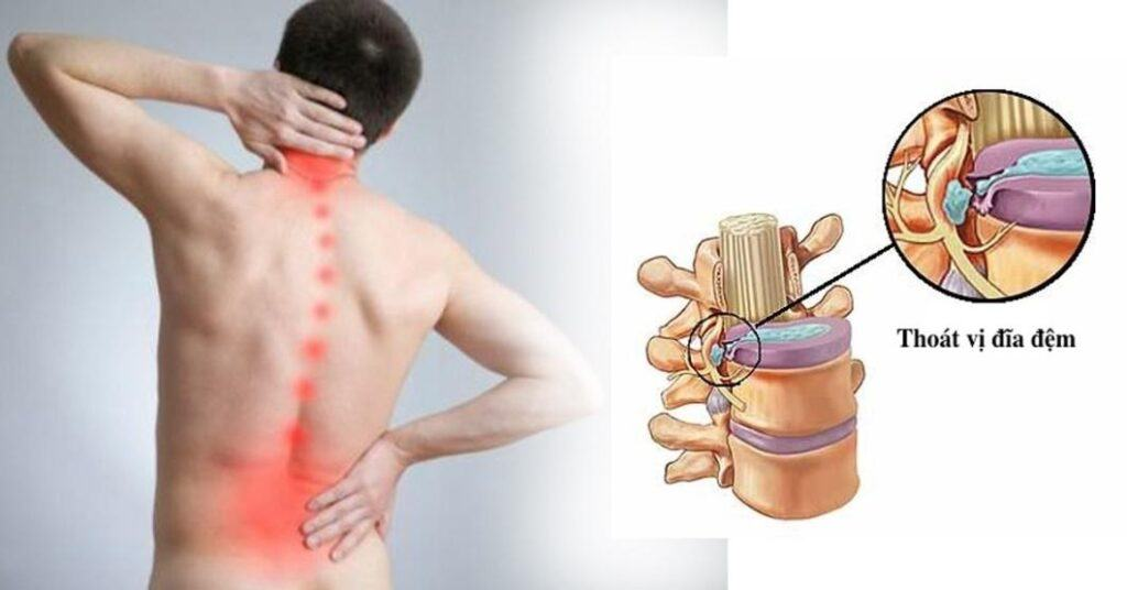 phau-thuat-noi-soi-vi-phau-cot-song-mini-invasive-spine-surgery